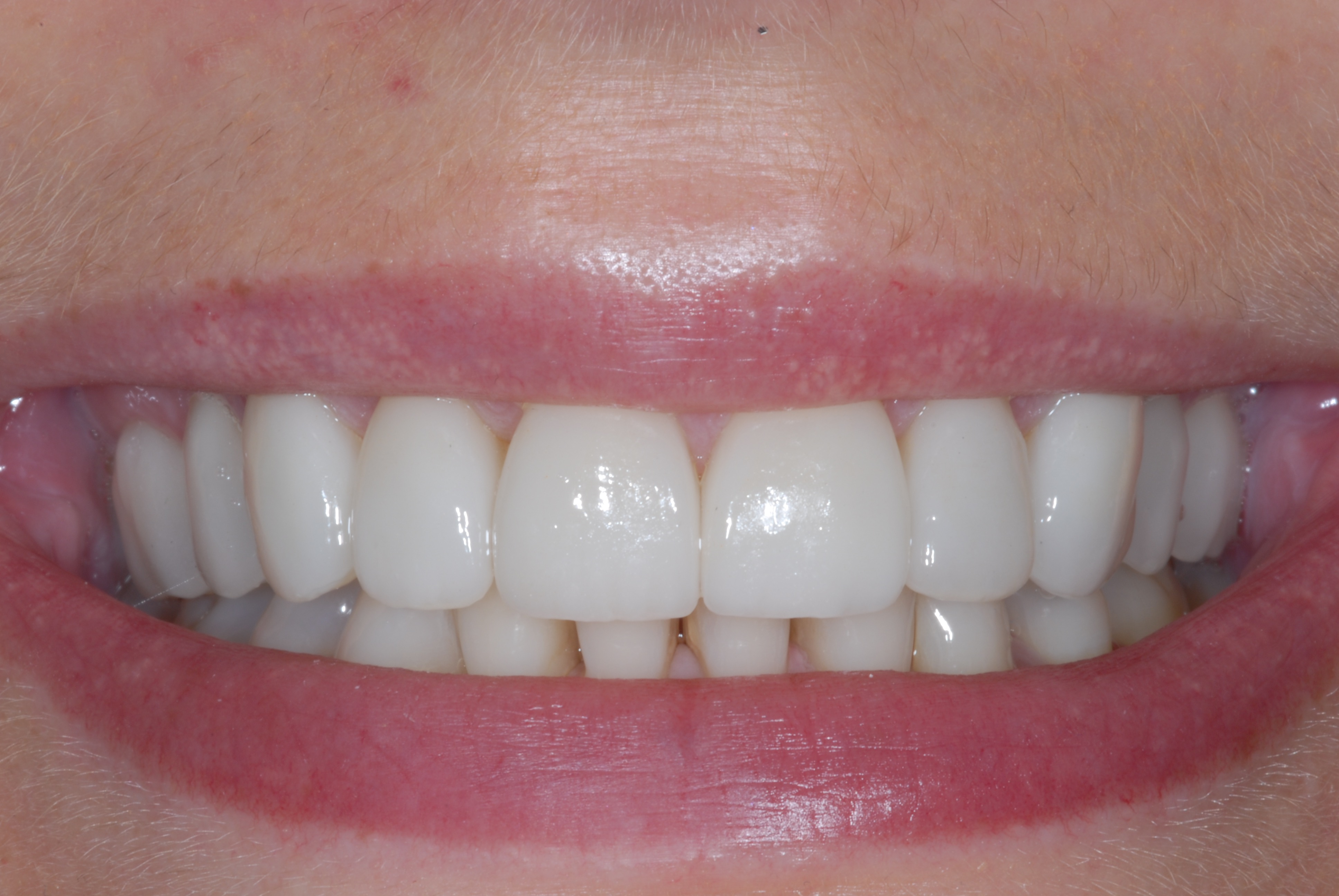 Ten Veneers Smile - After