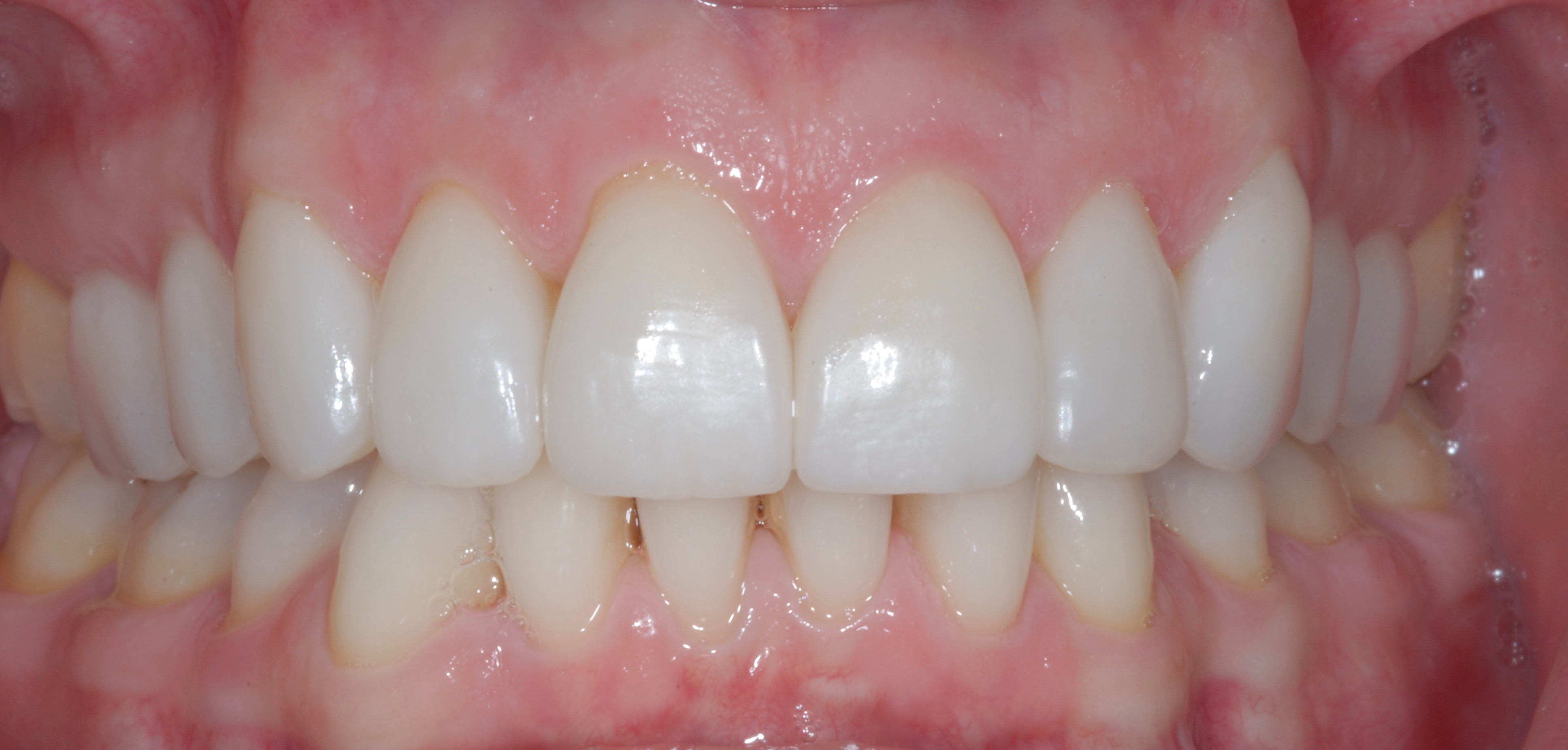 Ten Veneers - After