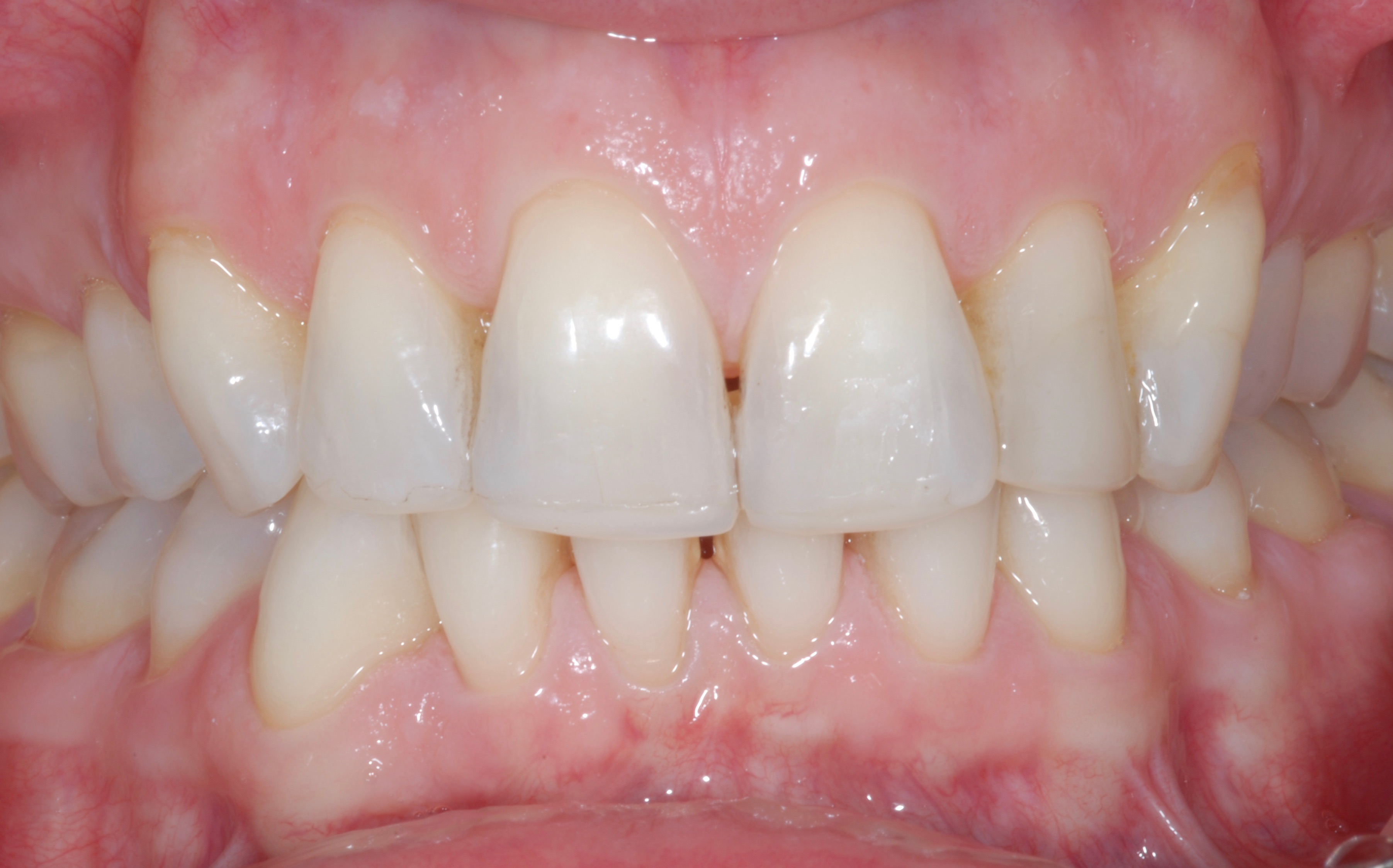 Ten Veneers Smile - Before