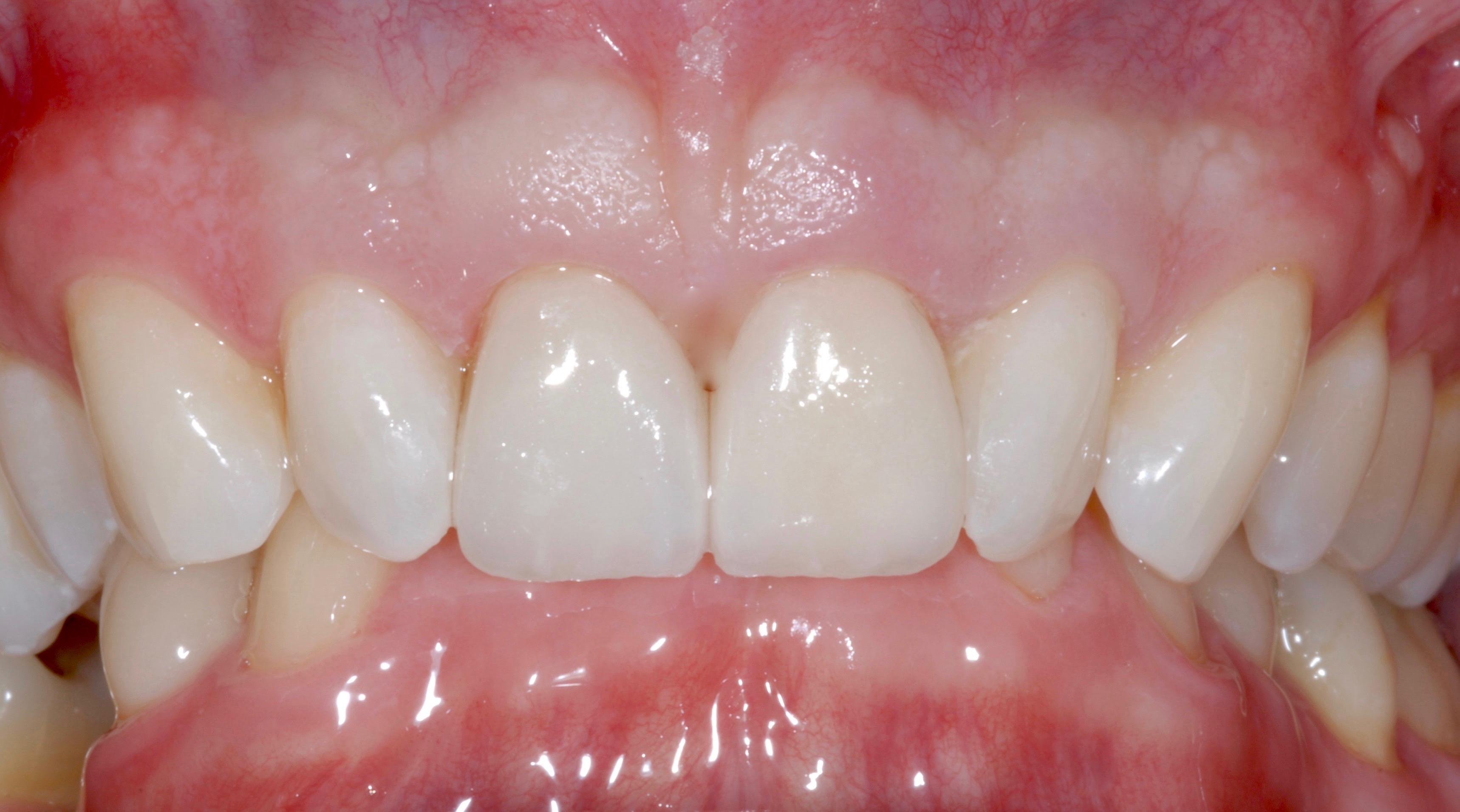 Veneers Dublin, Cosmetic Dentist Dublin, Veneers Dental Clinic