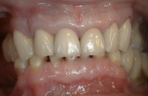 Wear, Erosion - Occlusal after