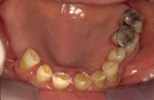 Wear, Erosion - Occlusal view before