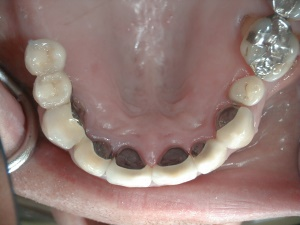 Wear, Erosion - Occlusal view after