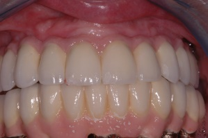 Replacement of all teeth with implant supported bridgework
