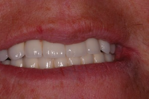 Replacement of all teeth with implant supported bridgework - with smile
