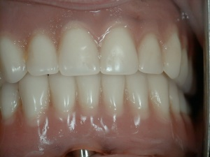 Implant stud retention, with denture