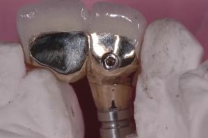 Esthetic Implant palatal screw retention