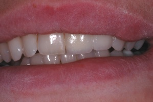 Esthetic Implant - Smile