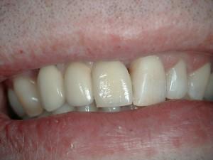 Complex Implant Bridge After - Smile
