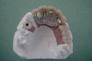 Implant Bar - Bridge on Cast