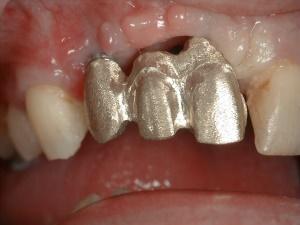 Complex Implant - Bridge Metal Framework Try