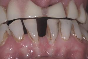 Hip Graft - Denture before