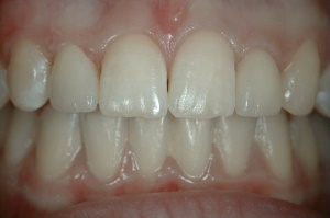 Lateral Incisor Veneers - after