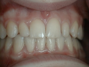 Lateral Incisor Veneers - before