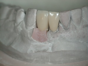 Lower Incisors Crown & Implant on cast