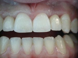 Implant Crowns - after