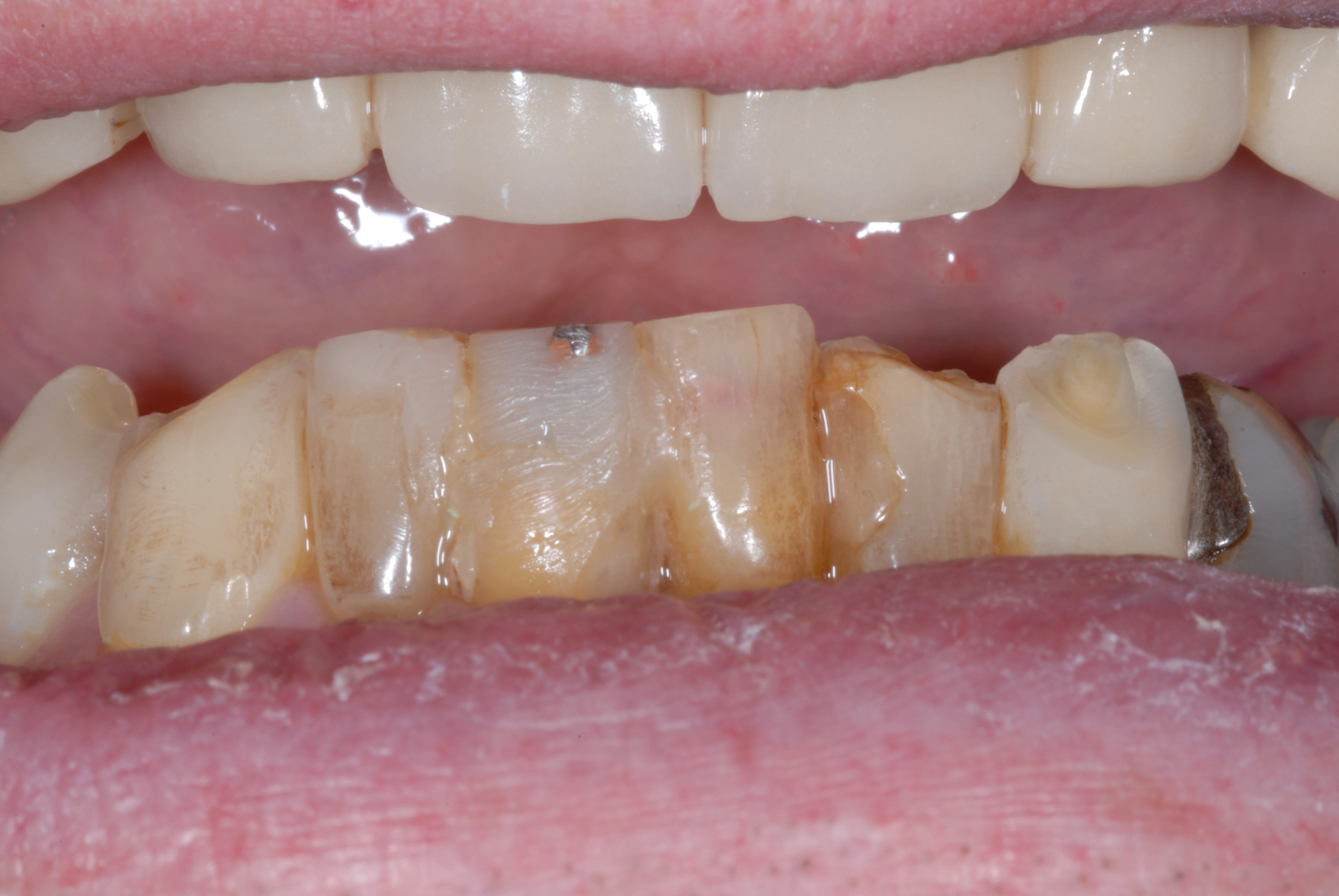 Lower Veneers - Before