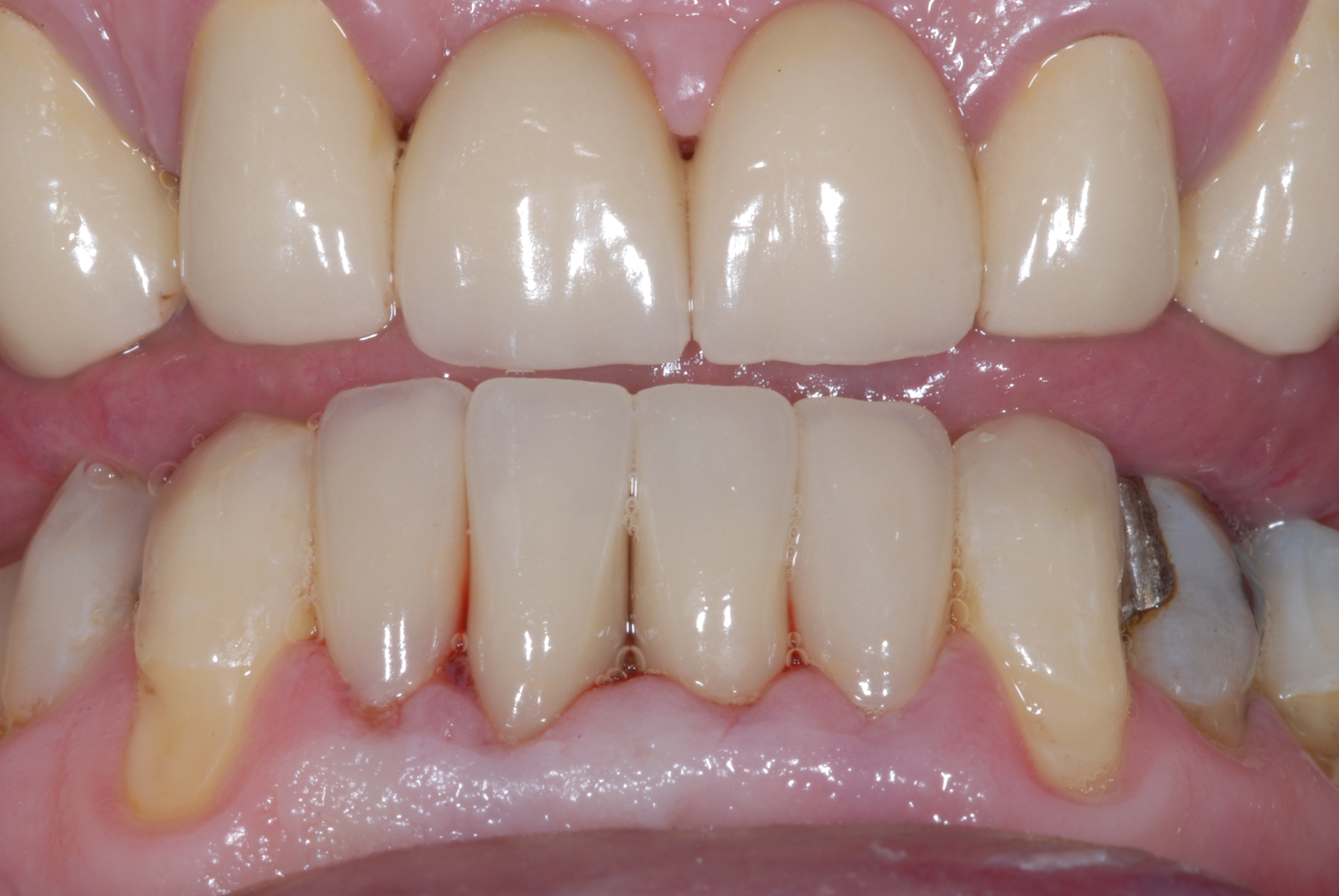 Lower Veneers - After