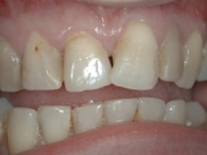 Front Teeth Before Treatment