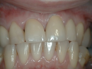 Front Teeth After Treatment