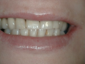 Front Teeth Smile After Treatment