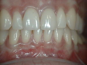 High Smile Front Central Incisor Crowns