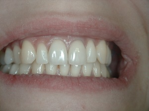 High Lip Front Central Incisor Crowns