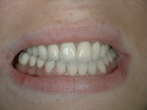 Full Mouth Reconstruction - with Crowns
