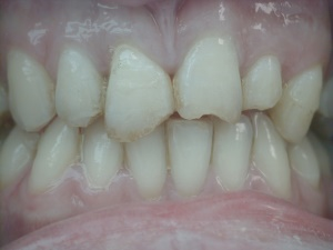 Damaged Teeth Before Bonding