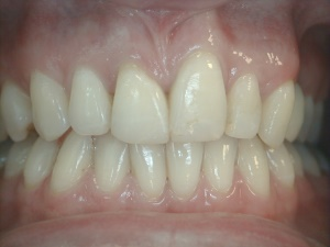 Damaged Front Teeth After Bonding