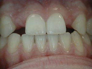 Implant Spaces Before