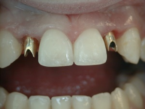 Implant Posts to Support Crowns