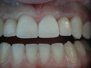 Implant Crowns After