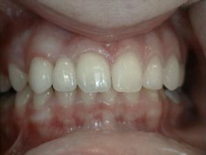 Missing Teeth and Veneers - After