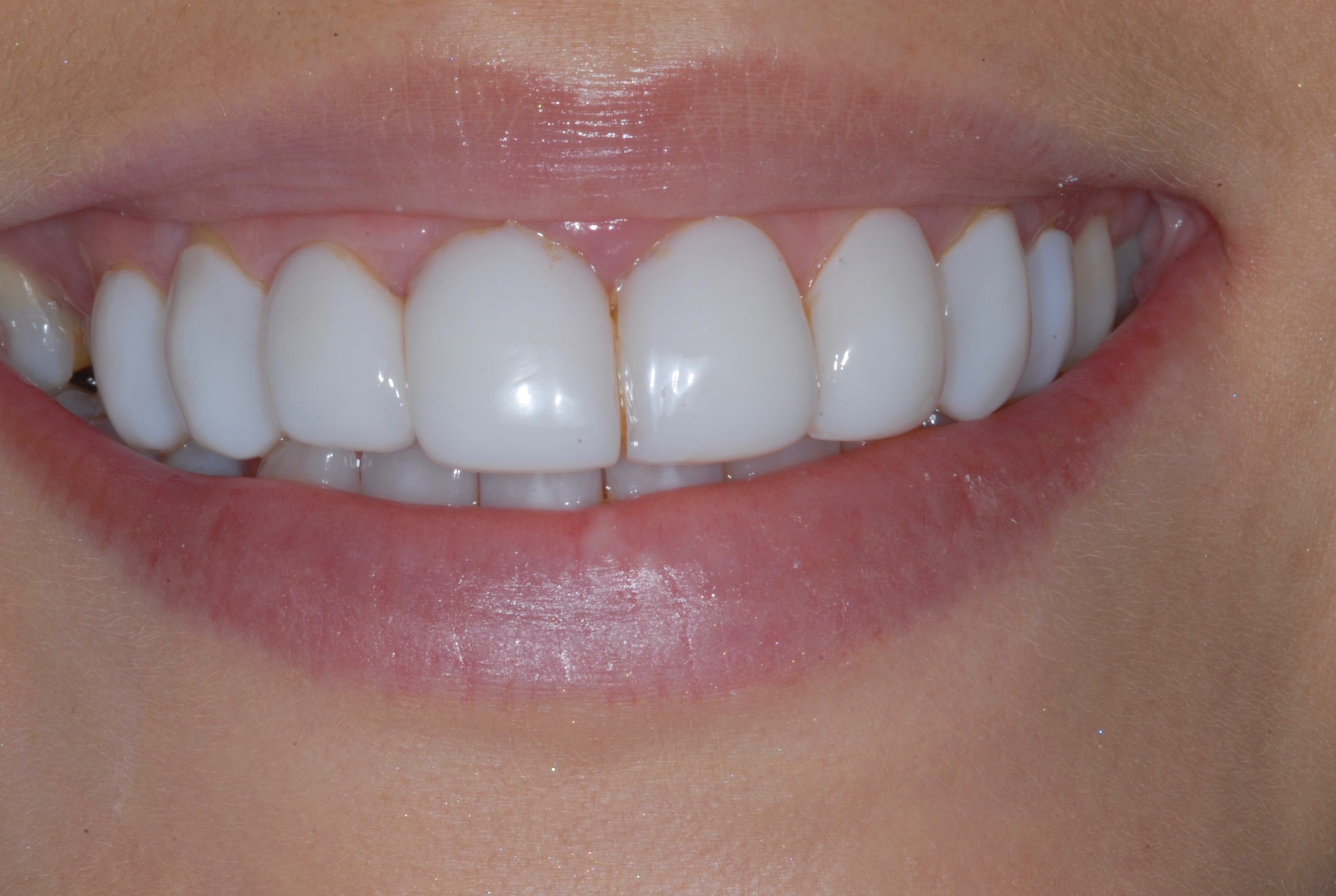 Resin Veneers - Before
