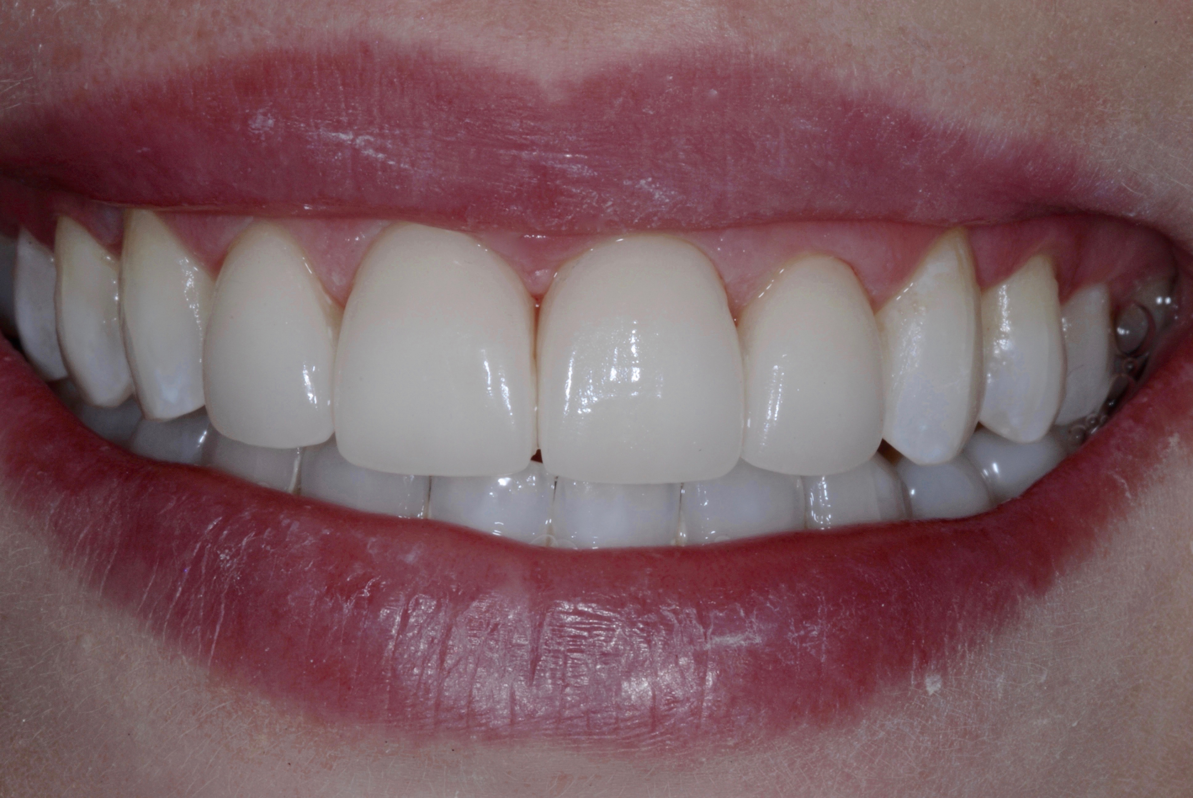 Ceramic Veneers - after