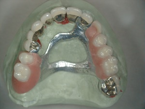 Removable Partial Denture - on cast, with crowns