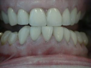 Retreatment Crowns - after