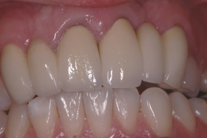 Cleft Palate - Fixed Bridgework After