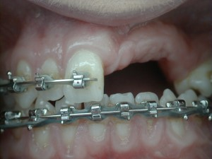 Trauma Orthodontics - Implant