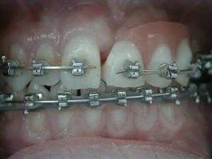 Trauma Orthodontics - Implant Provisional Teeth