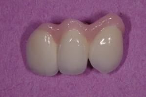 Trauma Implants Bridge Porcelain