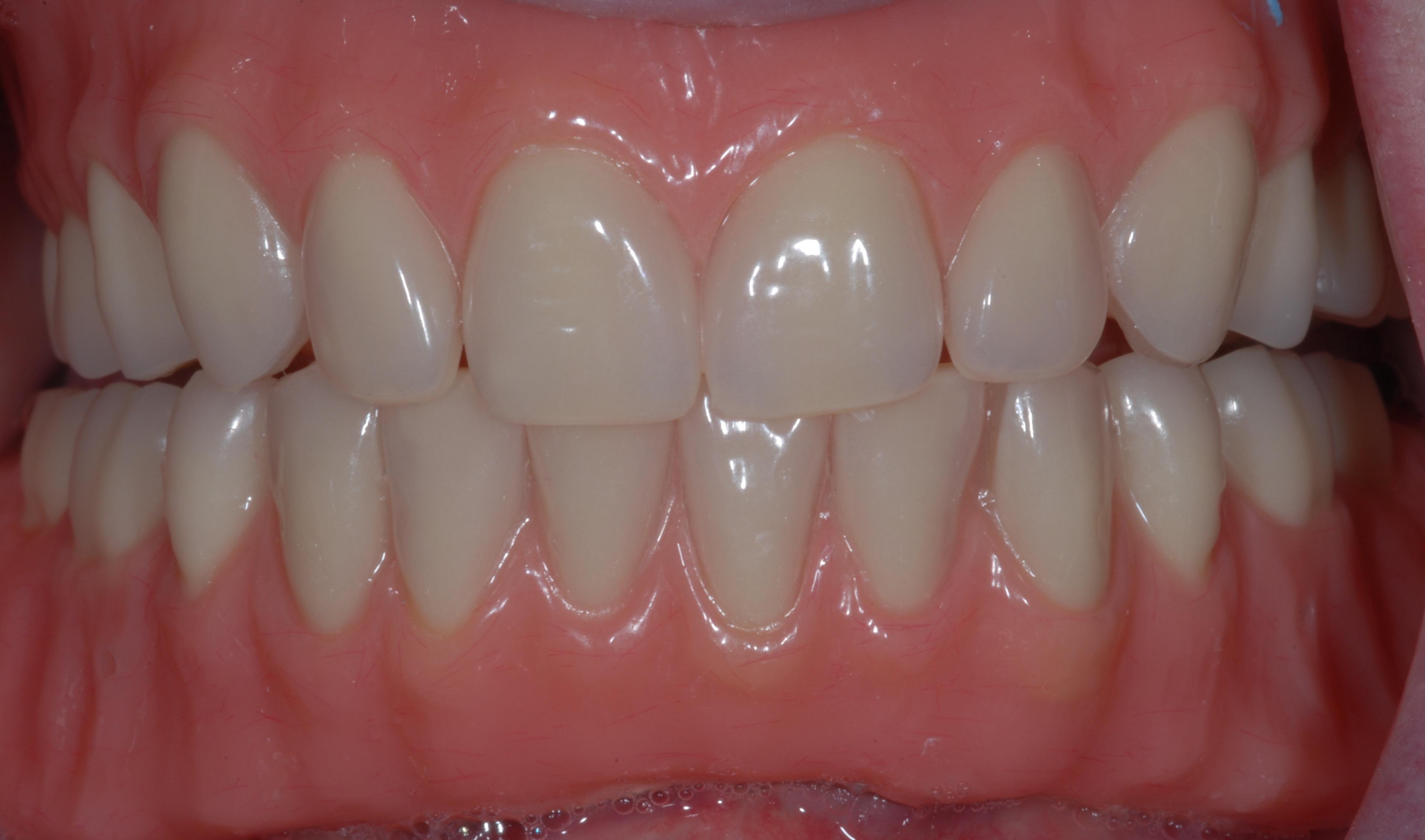 Denture - After