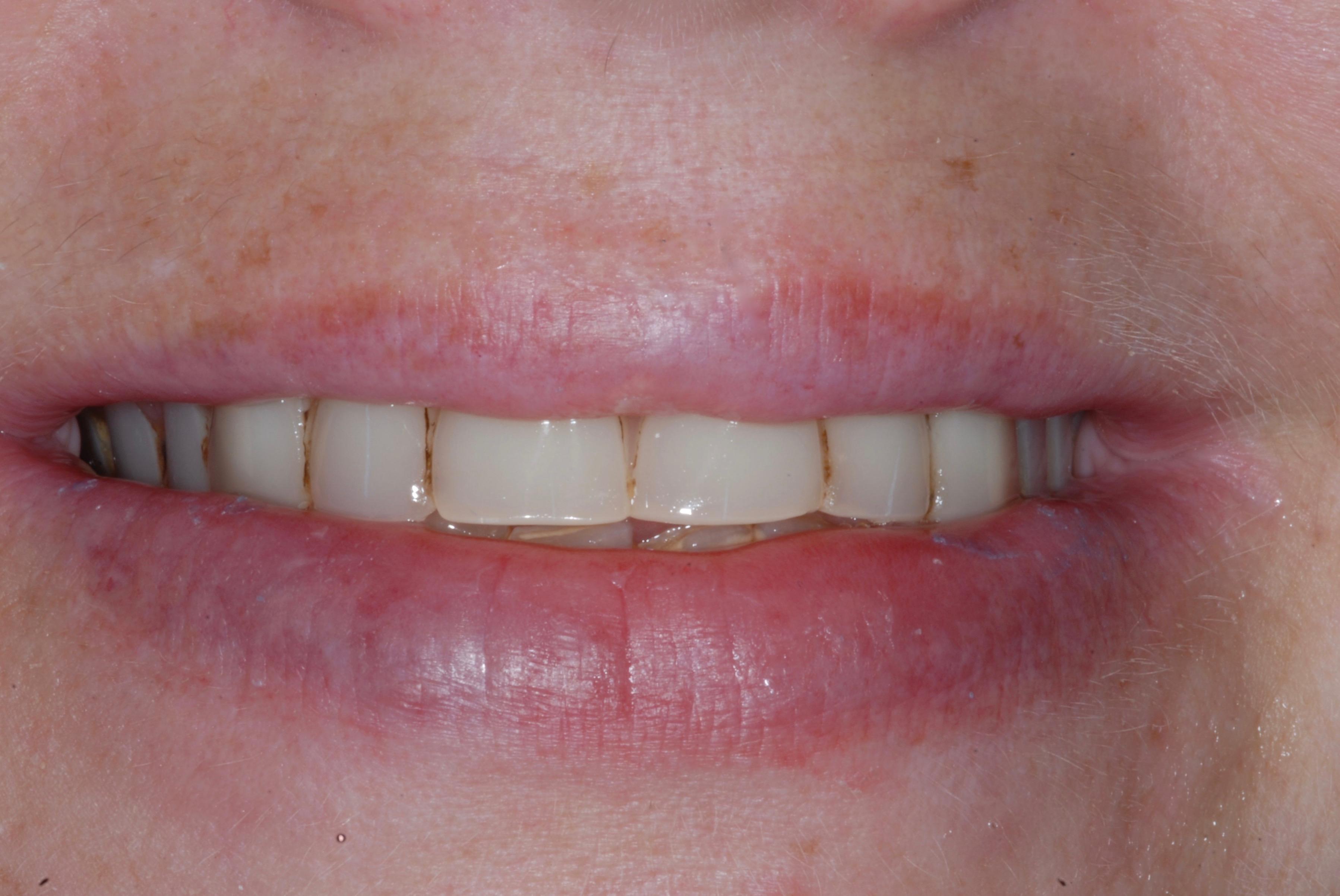 Denture Smile - Before