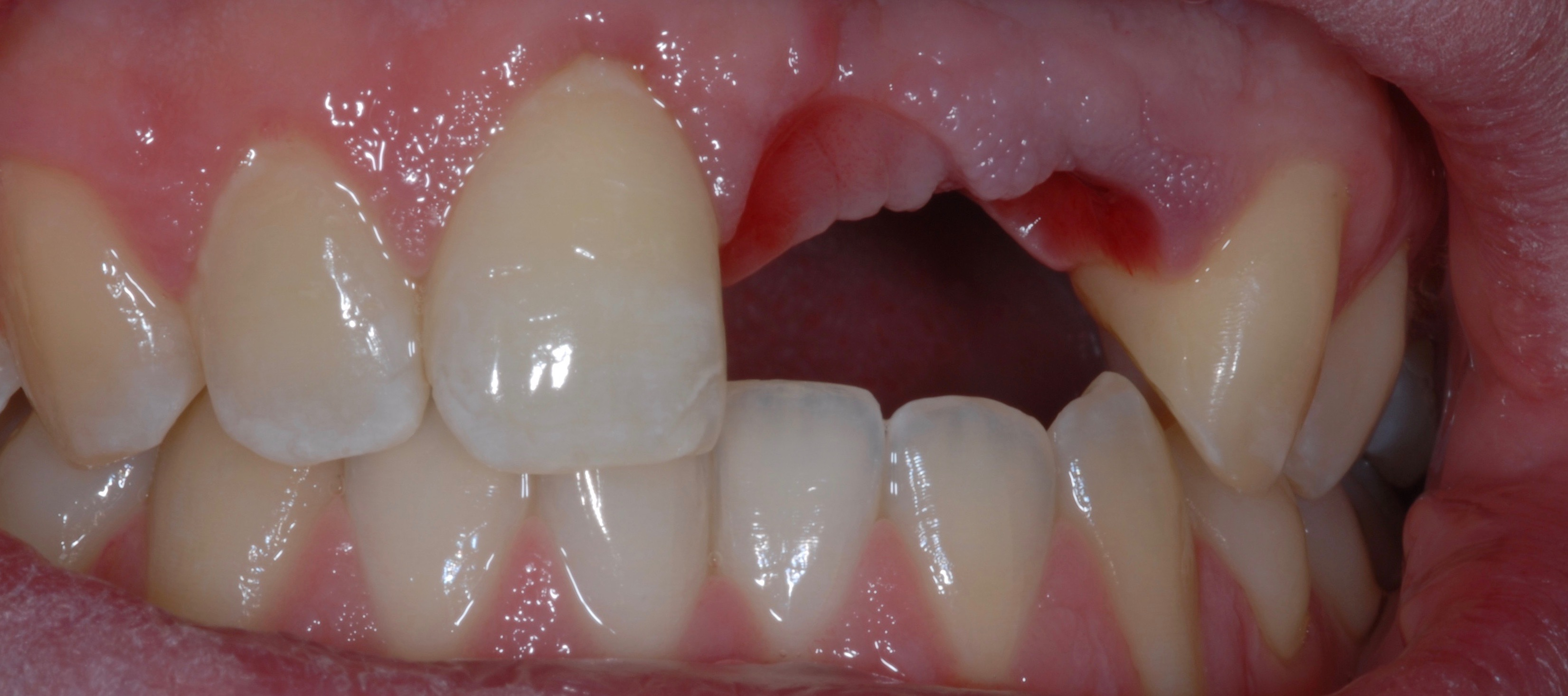 Implant Problem - Before