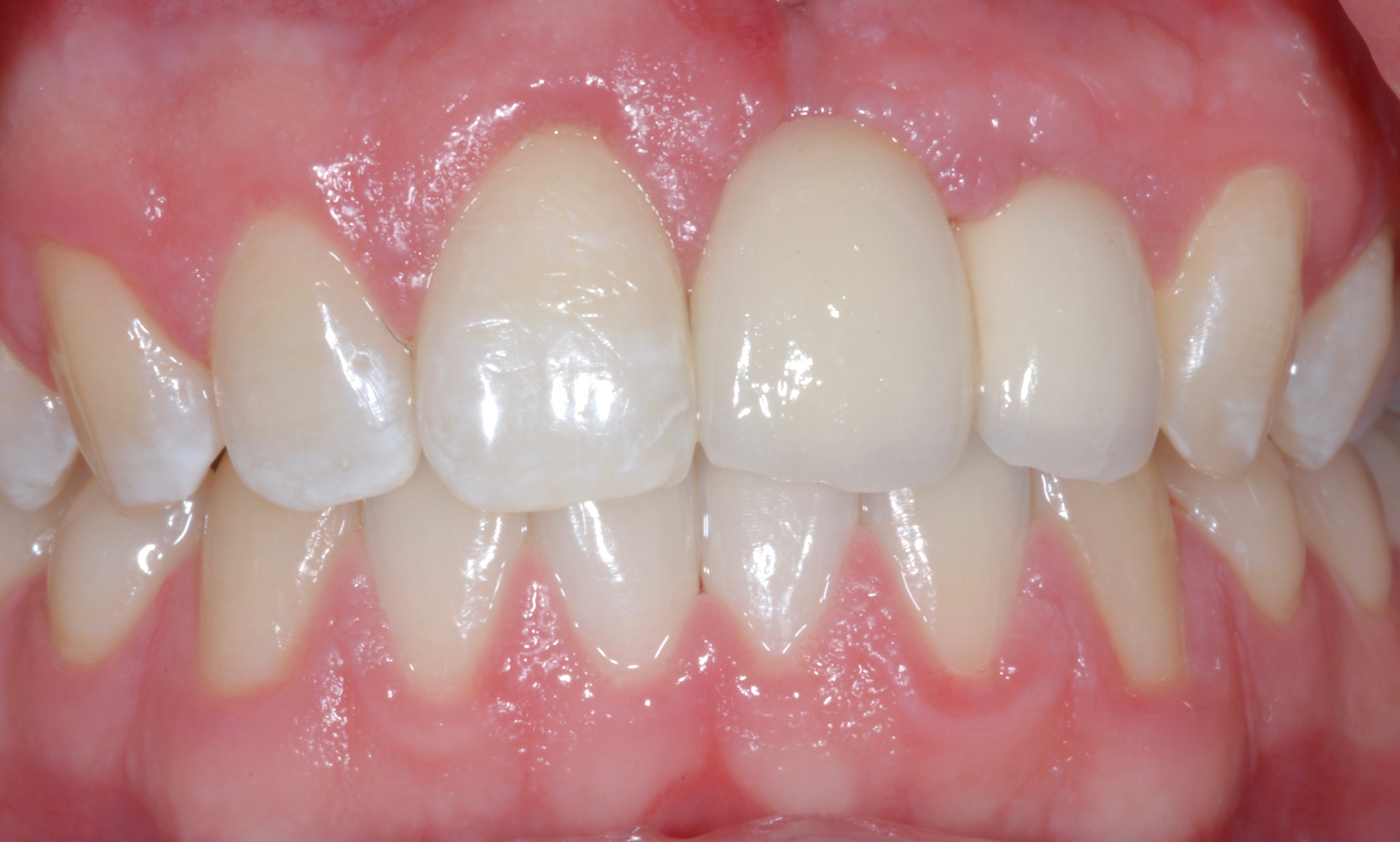 Tooth Replacement - After