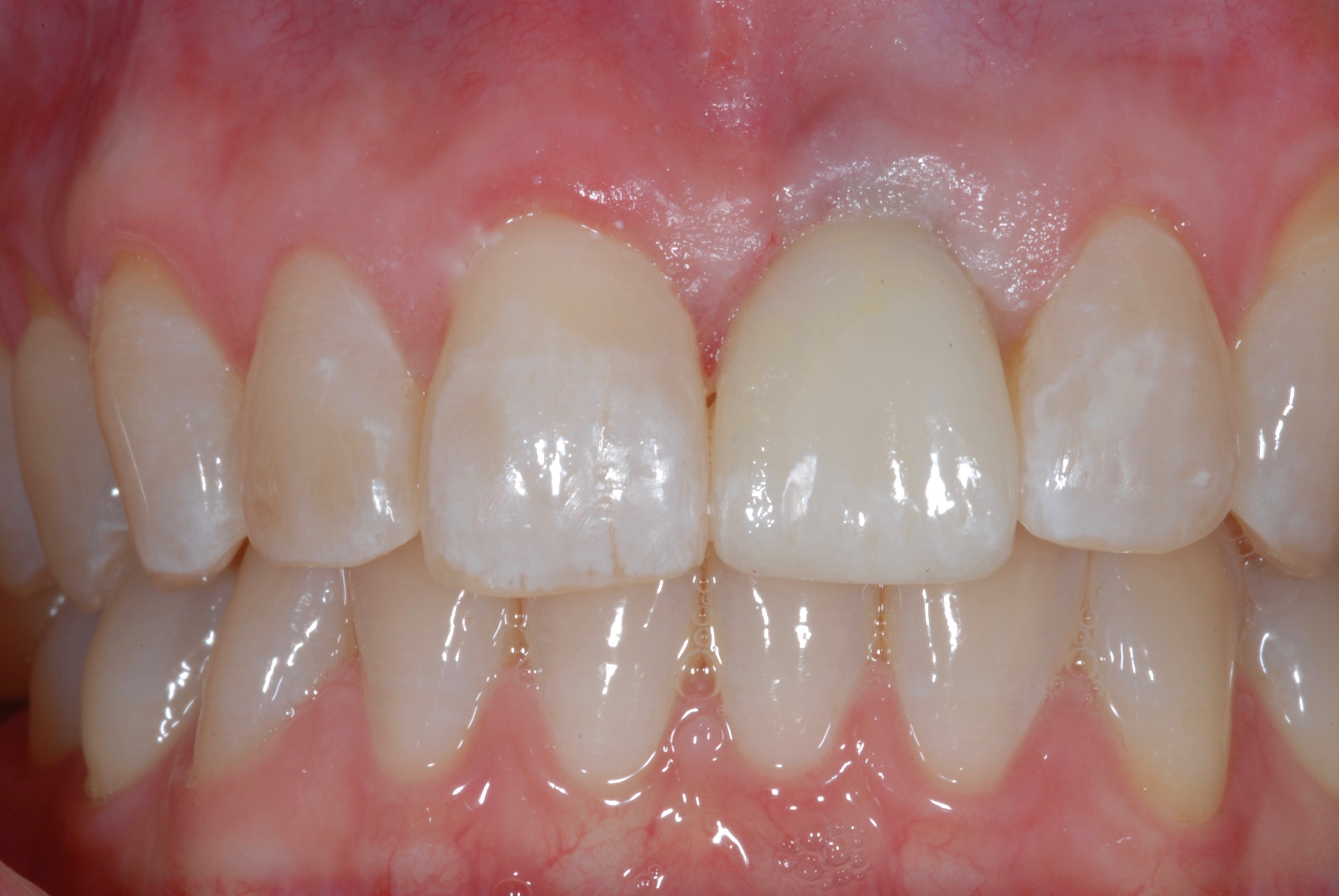 Single Front Tooth Implant