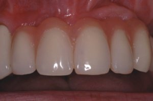 Complex Implant Supported Restorations