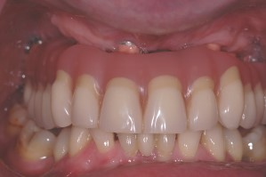 Comprehensive Reconstructive Dentistry