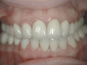 All Teeth Reconstruction with Crowns